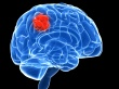 Brain tumour investment 'lagging'
