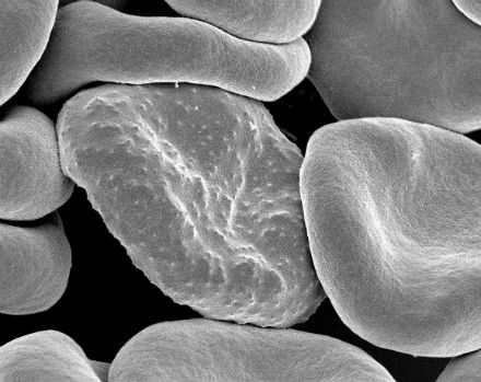 Essential malaria parasite genes revealed