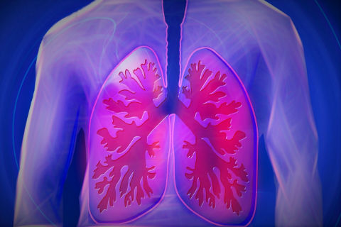 Recipharm's proprietary molecule Erdosteine recognised as COPD treatment