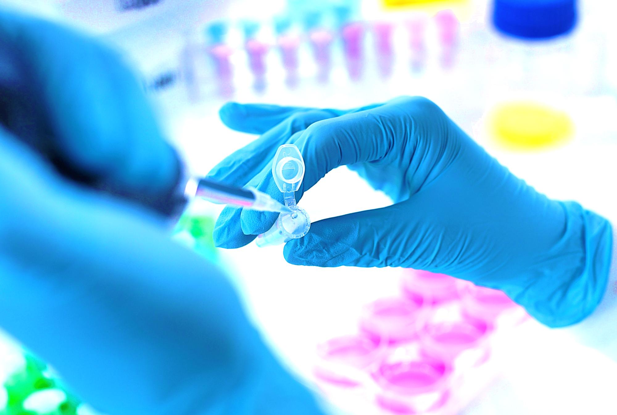 Nitrosamine Impurity Testing